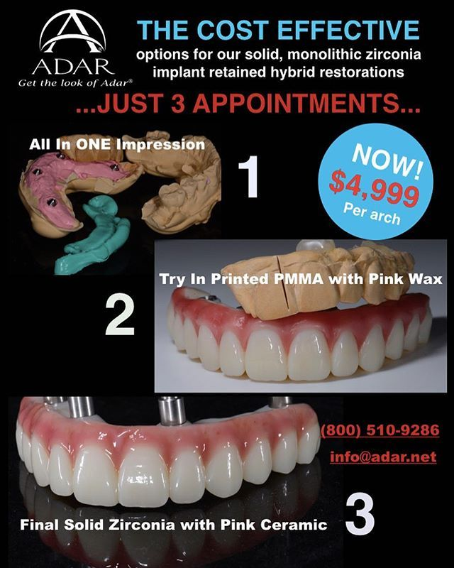 Exciting News We Have Finally Produced A More Cost Effective Product For Our Zirconia Implant Retained Hybr Cure Cavities Naturally Implants Denture Implants