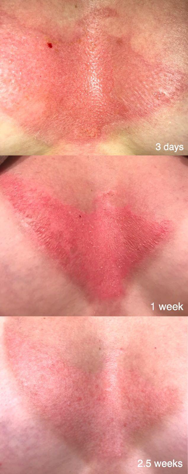 Severe sunburn healing progression [Sun Care]
