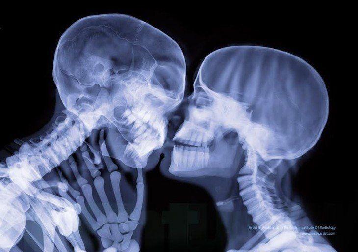 30 Fotos De Rayos X Que Te Cambiaran La Manera De Ver El Cuerpo Humano Cuerpo Humano Radiografia De Craneo Esqueleto Humano