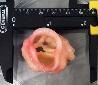 Bioprinted Heart Valve - Advancing Tissue Engineering: The State of 3D Bioprinting