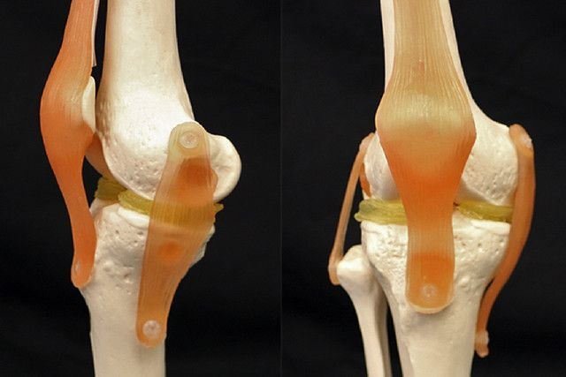 3D printing hydrogels could help fix damaged cartilage in knees