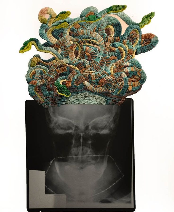 Matthew Cox takes x-ray images and stitches new narratives for the subjects. It's clever stuff and he's fine write a few of them. Enter his name in the Search on MrXStitch to see more! :) #mrxstitch #handembroidery #xray #medusa #creativityfound #manbroiderer via The Mr X Stitch official Instagram  Share your stitchy 'grams with us - @mrxstitch #xstitchersofinstagram #mrxstitch