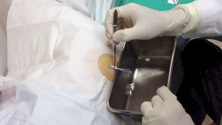 testosterone pellets incerted in the hip | Testosterone Pellet Insertion - YouTube
