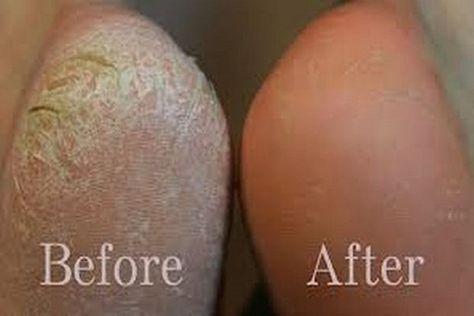 Zien je voeten er ook net zo uit als op het linker plaatje hieronder? Dan hebben we een manier gevonden hoe je voeten er weer keurig netjes uit komen te zien. Het grote voordeel van