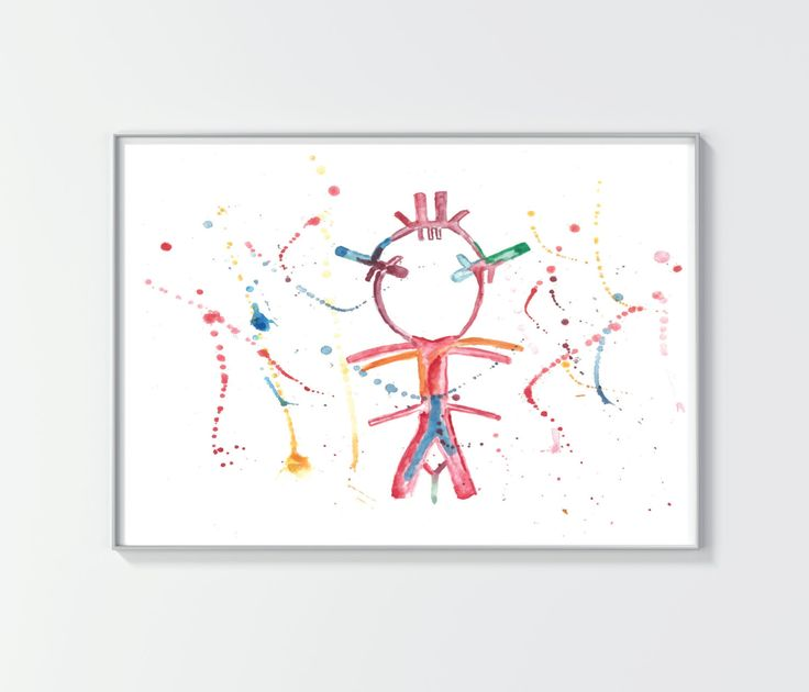 Brain Arteries Print