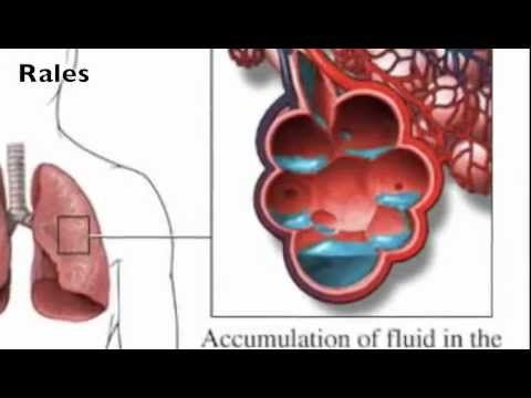Lung Sounds - Rales, Rhonchi, Wheezes