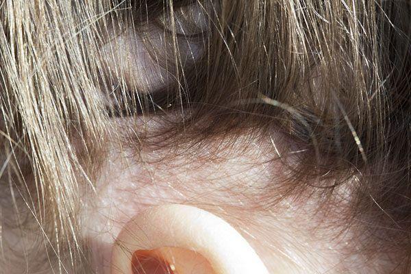 Head lice eggs above the ears.