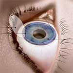 Top 10 Laser Eye Surgery Risks - http://www.healtharticles101.com/top-10-laser-eye-surgery-risks/#more-952