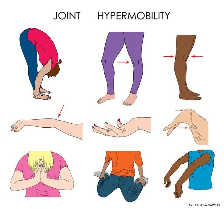 Hypermobility is one of the most typical symptoms of Ehlers Danlos Syndrome. What does it mean to be hypermobile? This pic helps explain.