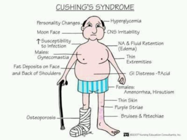 Cushings