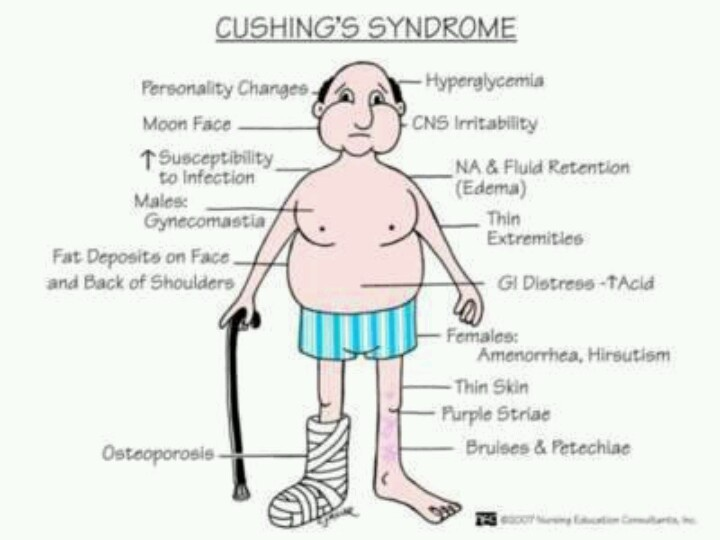 Cushing's syndrome ,,,