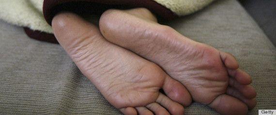 Homemade Cures for Dandruff, Dry Heels, Etc.