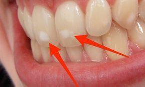 Πού οφείλονται ΑΥΤΑ τα λευκά σημάδια στα δόντια – Τι πρέπει να κάνετε #Υγεία