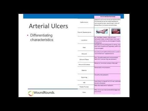 139 best Nursing Skin \ Wound care videos images on Pinterest - wound ostomy continence nurse sample resume