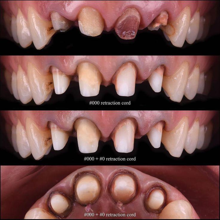 Only for dentists Fiber post was placed for all incisors. Due to lack of time I couldn't perform intracoronal bleaching before all procedures... Sadece diş hekimleri için Normalde bu tür vakalarda; tüm işlemlerden önce kuroniçi beyazlatma uyguluyorum. Ama bu vakada; zaman darlığından dolayı direk fiber post uygulamak zorunda kaldım... #hagerwerken #fiberpost #toothpreparation #ultradent #retraction #dentalphotography #prosthodontist #dentist #dentistry #dişhekimi #ozgurbultan #vivadent…
