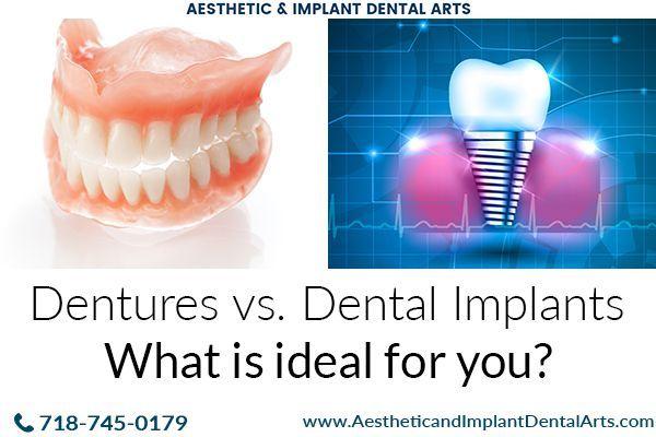 Dental Implants Vs Dentures Which Is Better Dental