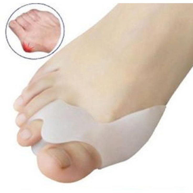1 pair Medical Silica Gel Beetle-crusher Bone Ectropion Toes outer Braces