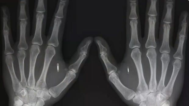 Microchip implants, popular with pets, are catching on with some humans despite the risks