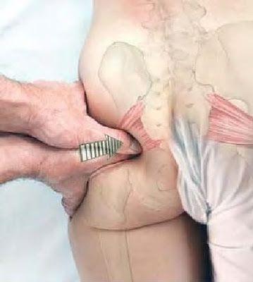 1. What is Sciatica? | Basic Clinical Massage Therapy Piriformis (Sciatica) Be…