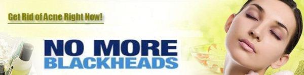 Treatment for Blackheads - Blackheads Treatment