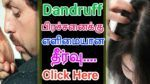 beauty and hair/dandruff in hair/how to remove dandruff from head/how to remove dandruff quickly