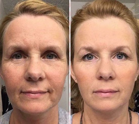 How You Can Get A Non-Surgical Facelift Employing Effortless Facial Toning Exercises