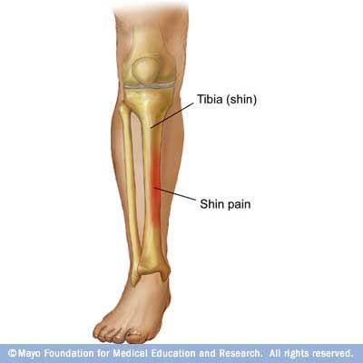 Vanderbilt Athletic Training: Shin Splints Defined