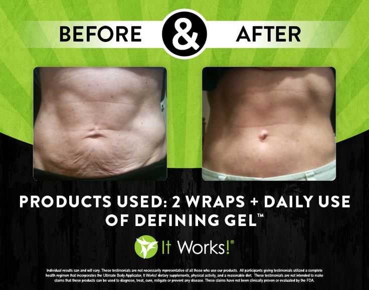 Awesome It Works body wraps and It Works defining gel before and after! Get 40% OFF as a loyal customer! www.facebook.com/wrapwithmelissav : FabFitHealth.myitworks.com Email - MelissaVasconcellosWraps@gmail.com