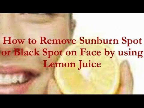How To Remove Sunburn Spot or Black Spot on Face by using Lemon Juice