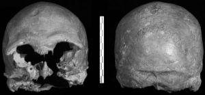 Craniul Cioclovina1 a apartinut unuia dintre cei mai vechi europeni – Mix de Cultura