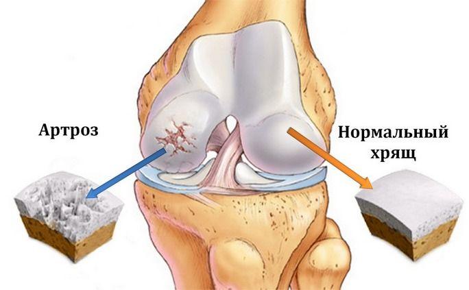 Здоровый и пораженный артрозом коленный хрящ