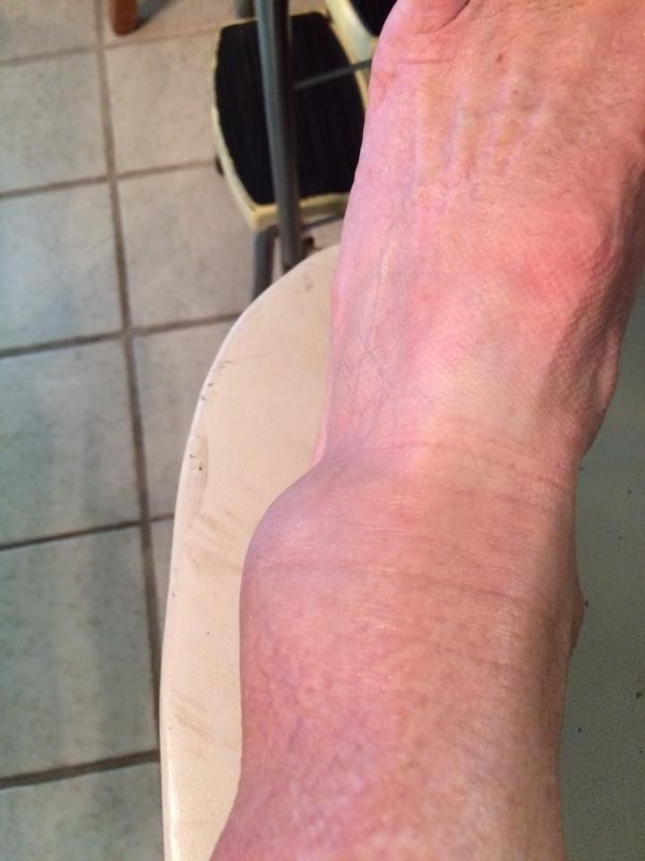 How to Treat a Broken Ankle