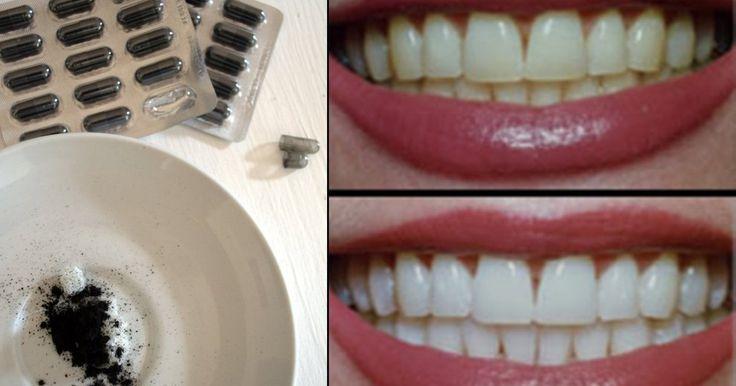 Twarz i uśmiech jest pierwszą rzeczą na jaką zwracamy uwagę kiedy kogoś poznajemy. Czyste i białe zęby są odzwierciedleniem naszej higieny, dlatego ważne jest, aby o nie dbać. Poniżej znajdziecie ...