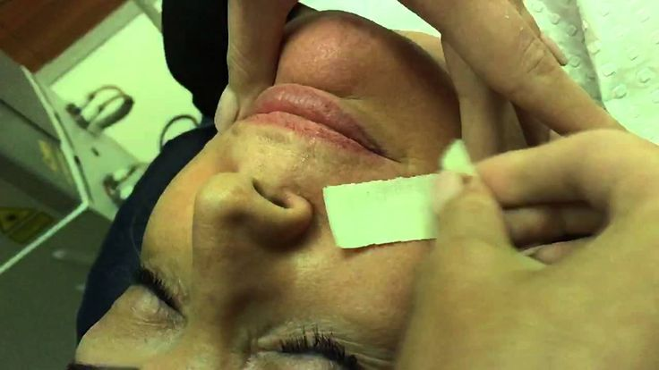 Upper lip waxing removal
