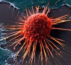 Двенадцать мифов официальной онкологии