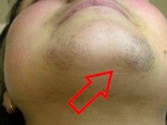 Jak odstranit chloupky z obličeje přirozeným způsobem: Depilace doma!