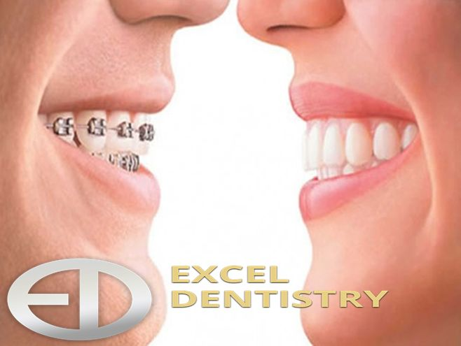Looking for the best #dentist #near #Ridgewood? Excel Dentistry has got you covered. Achieve the smile of your dreams with effective options!