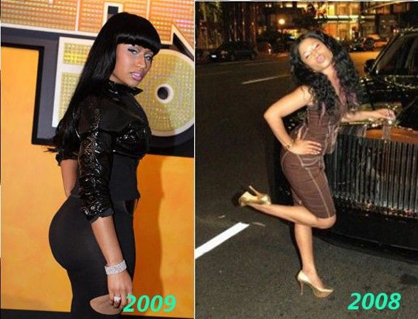 Did Nicki Minaj Get Butt Implants See Before And After