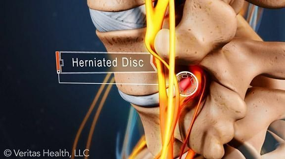 A herniated disc in the lower back can cause low back pain and/or leg pain by putting pressure on the nerve root. Nonsurgical and surgical treatments for a lumbar disc herniation are available to patients, depending on their level of pain. #PinchedNerveInLowerBack
