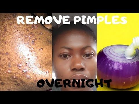 How To Remove Pimples Overnight | Acne Treatment |…