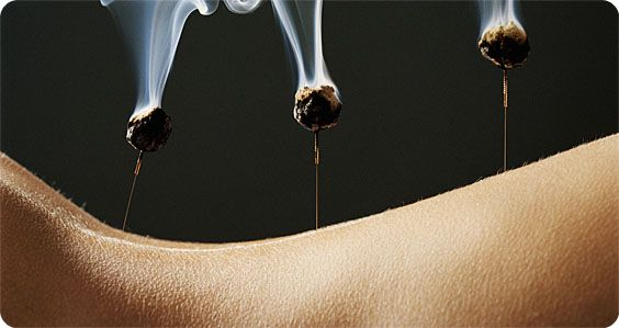 Google Image Result for http://www.tcm.org/files/imagecache/blog-front-picture-in-body/moxibustion-front.jpg