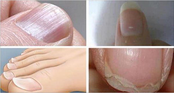 7 Nail Conditions Linked to Serious Diseases! Do Not Ignore Them! - ✉