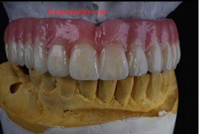 Porque Duelen y Se Inflaman Las Encias #odontologia #dental #dentalhealth #boca