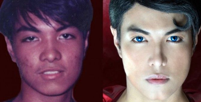 NowYouKnow: 19 Surgeries to look like Superman