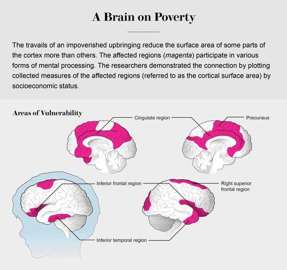 家庭環境が貧しいと子どもの脳は「貧困脳」になる - GIGAZINE