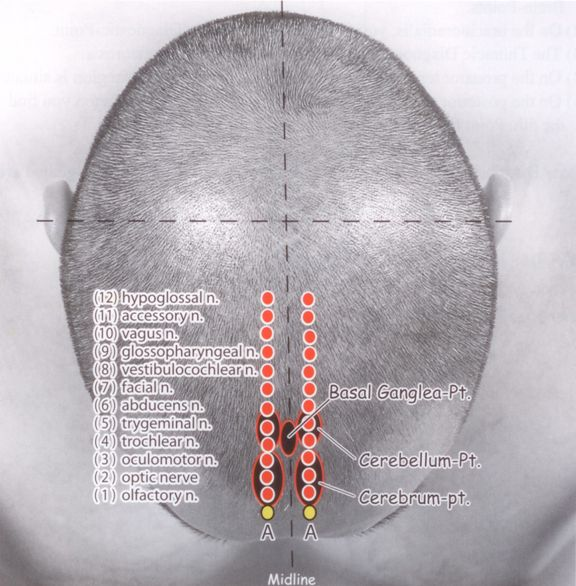 Yamamoto New Scalp Acupuncture (YNSA): Development, Principles, Safety, Effectiveness and Clinical Applications   InTechOpen