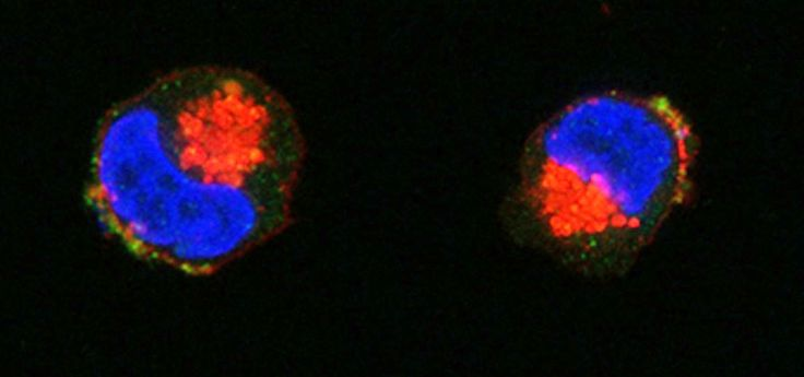 Cancer Drug Resistance   i3S CAPTION: The intercellular transfer of Pgp from drug resistant to drug sensitive cells may be mediated by extracellular vesicles.  This confocal microscopy image shows expression of Pgp in non-Pgp expressing drug sensitive cells following co-culture with extracellular vesicles from drug resistant (Pgp-overexpressing) cells. Nuclei are labelled in blue (with DAPI), plasma membrane and Golgi are stained in red (with WGA) and Pgp is detected in green (with FITC).