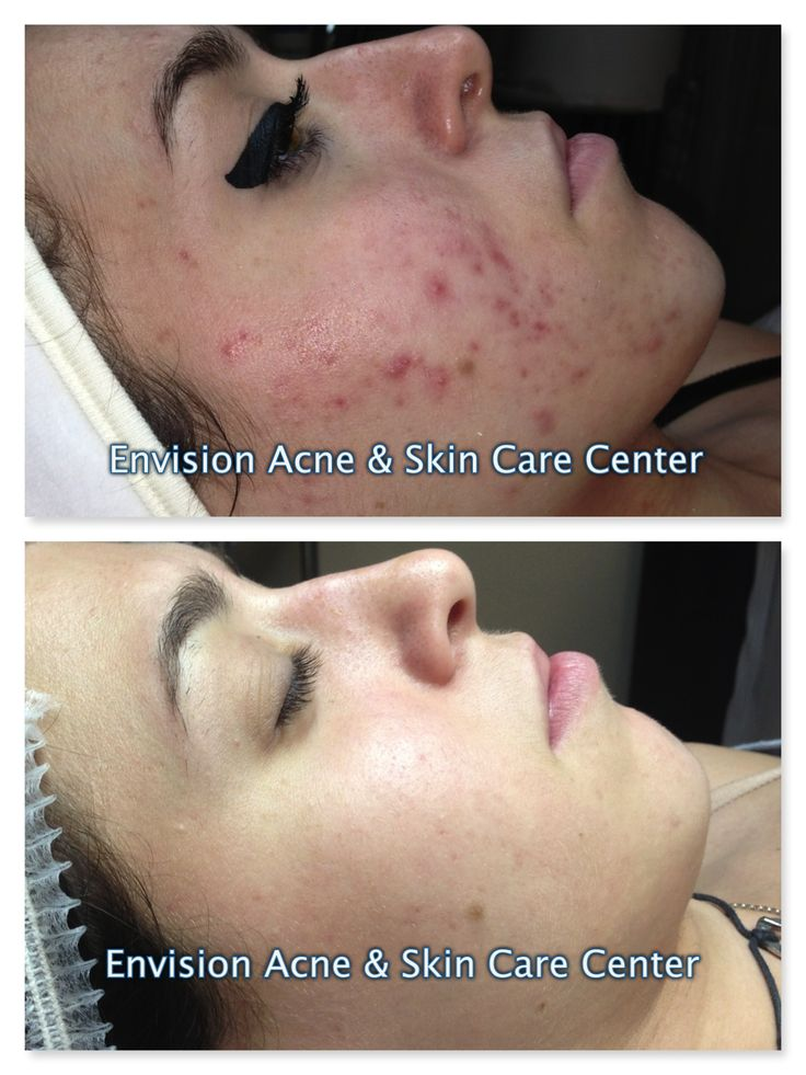 Best Cure For Adult Acne