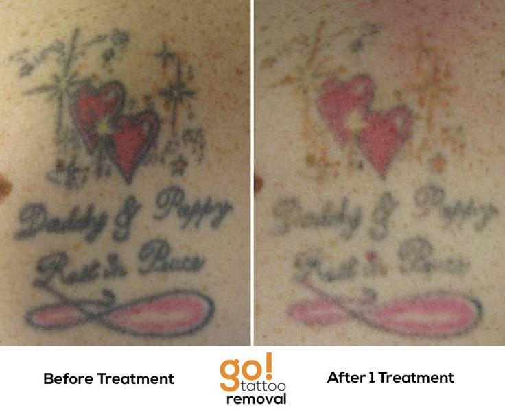 Pin by go tattoo removal on tattoo removal in progress for Natural remedies for tattoo removal