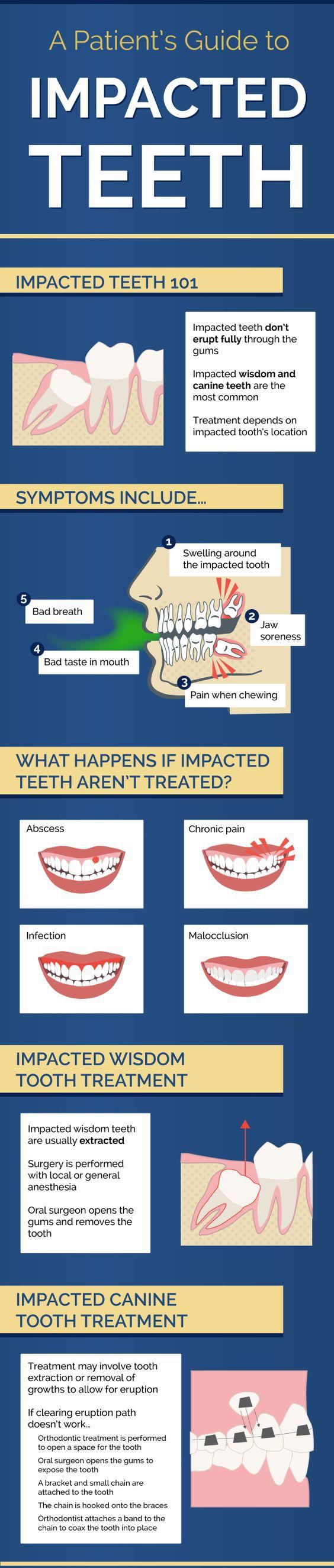 42 best wisdom teeth images on pinterest  dental care dental and dental procedures